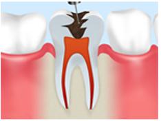 重度のむし歯に実施