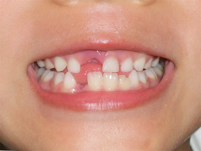 子供のこんな歯並びが心配では・・・